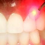 1laser-dentale-dentista-catania-bennici
