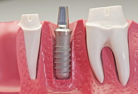 Studio Dentistico Dott.ssa Chiavassa Brescia Implantologia