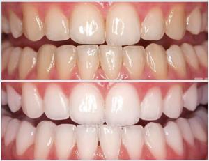 Sbiancamento-dentale-Studio-dentistico-Zamprogno-Montebelluna-300x231